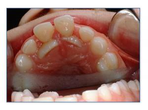 πέραν του κανονικού παραμονή των νεογιλών δοντιών