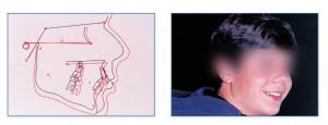 μη ομαλή ανάπτυξη και διάπλαση των γνάθων και των δοντιών
