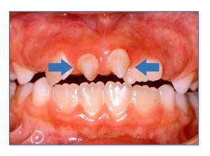 Υπεράριθμα δόντια